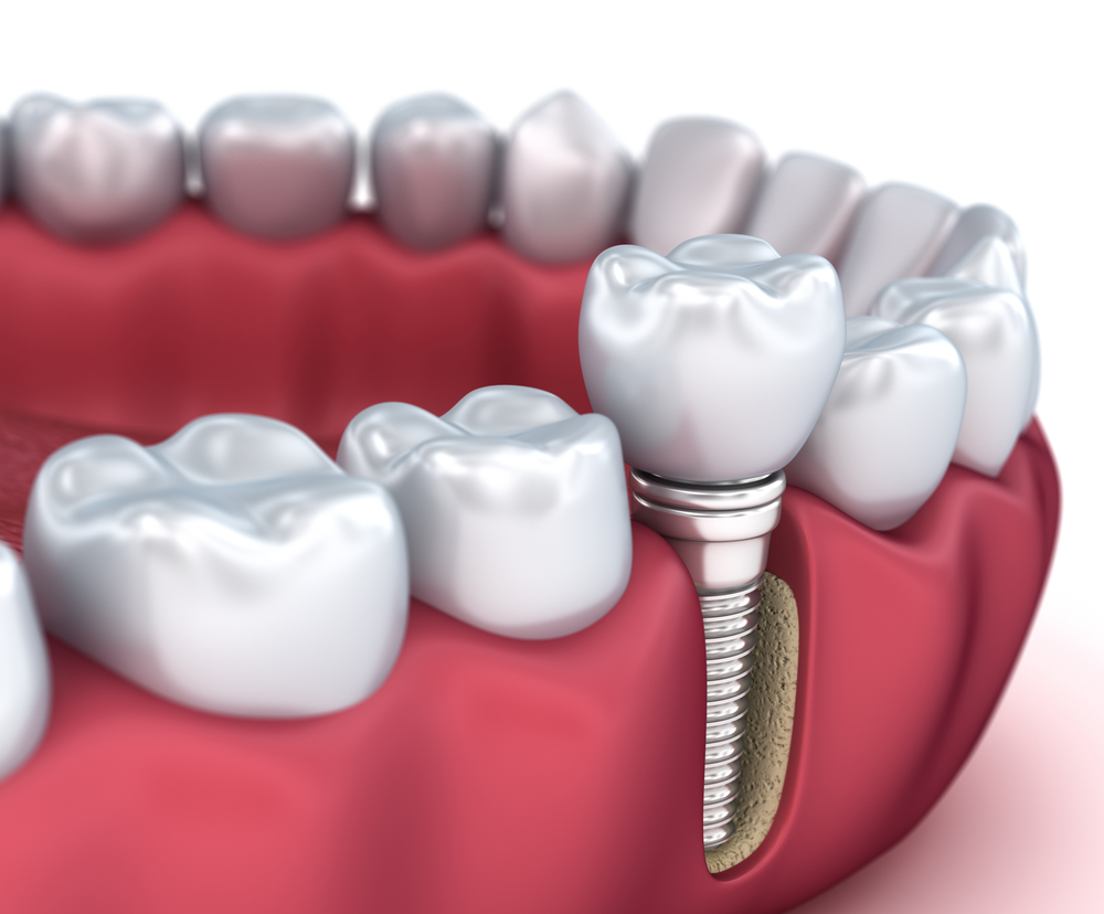 Does food get under dental implants